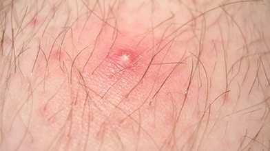 Photo of Ingrown Hair on someone's arm