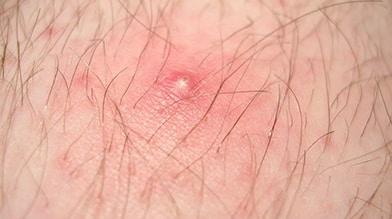 Photo of Ingrown Hair on someone's arm