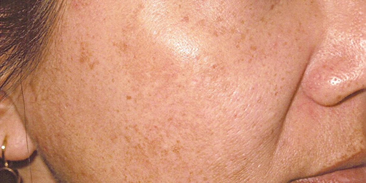 Pigmentation and Dark Spots Explained