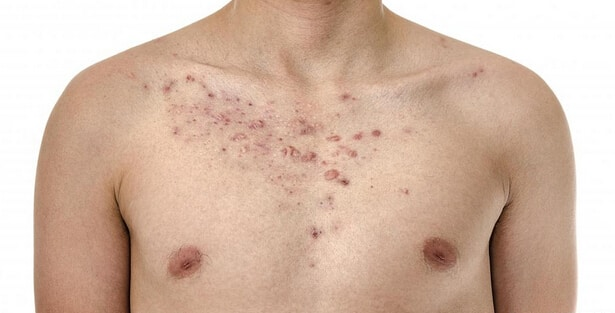 Get-Rid-of-Chest-Acne