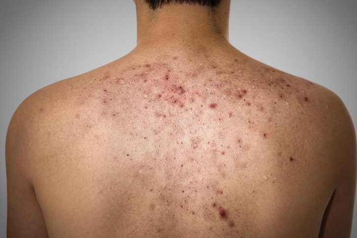 man-with-back-acne