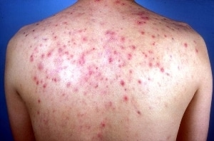 An Easy Guide on How To Get Rid of Spots on Your Back